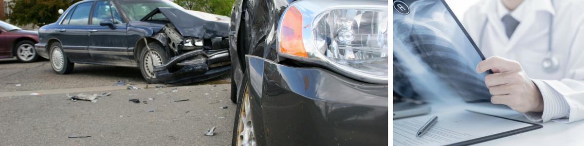Car Accident Medical Doctor